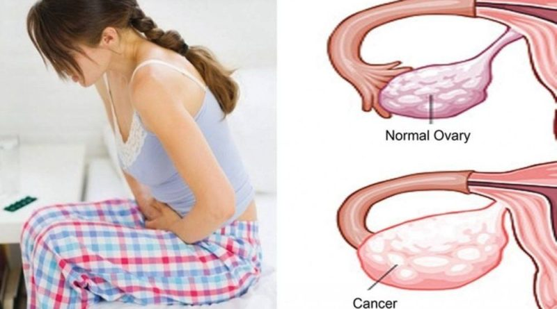 Ce-este-si-ce-simptome-are-cancerul-ovarian?