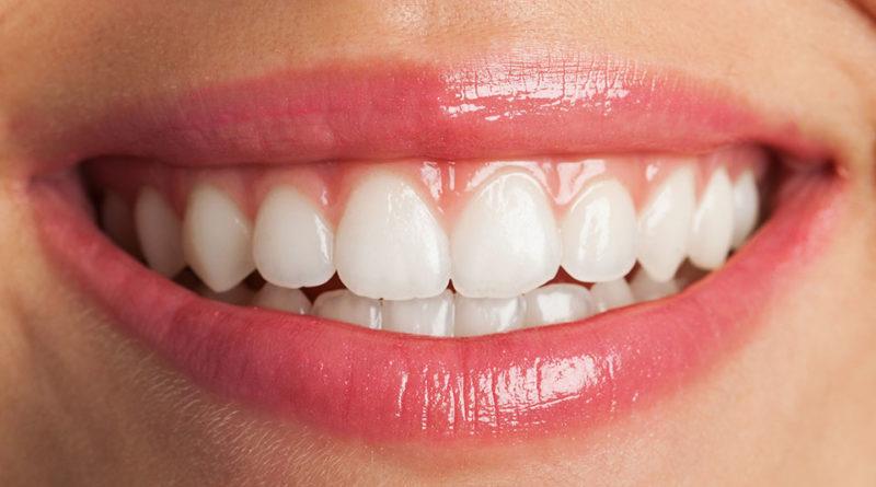 Ce este parodontita?